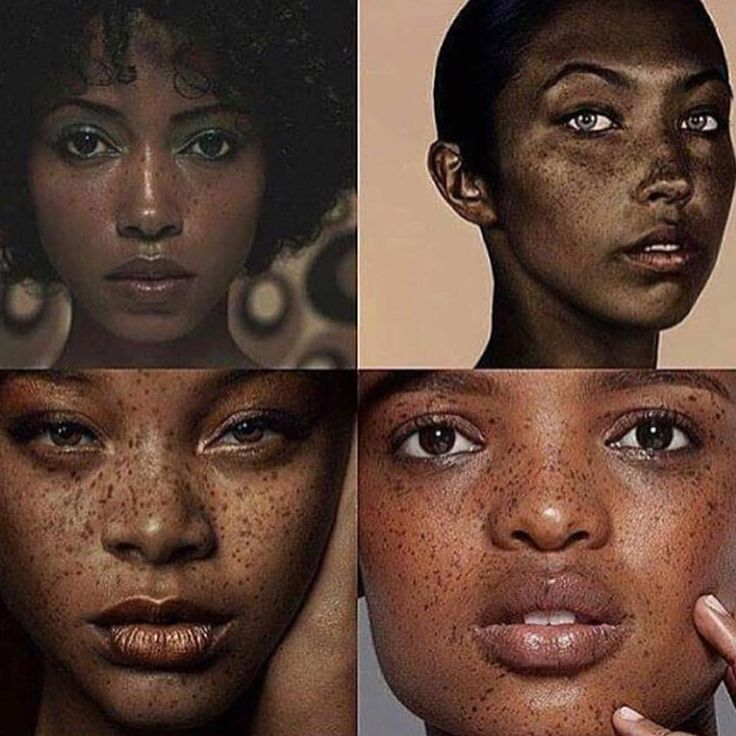 """4,899 Likes, 361 Comments -  Taz's Angels (@tazsangels_) on Instagram: """"Obsessed. ❤️ BBLU  Tag a baddie with freckles.   Embrace Flaws."""""""