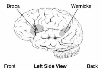 Brain Differences in Broca's and Wernicke's #Aphasia. Learn more about the types pf aphasia and what makes them happen: http://www.aphasia.com/about-aphasia/types-of-aphasia