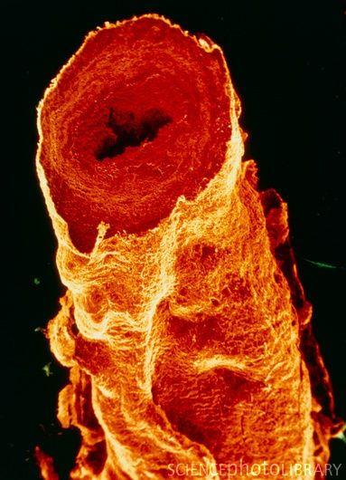 Sección de una vena safena varicosa vista con microscopio SEM y coloreada