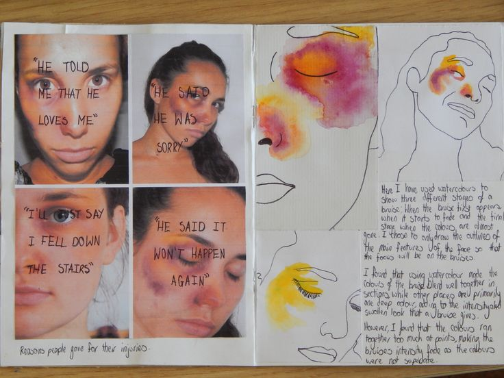 Pages 13 and 14. Explorating of bruises