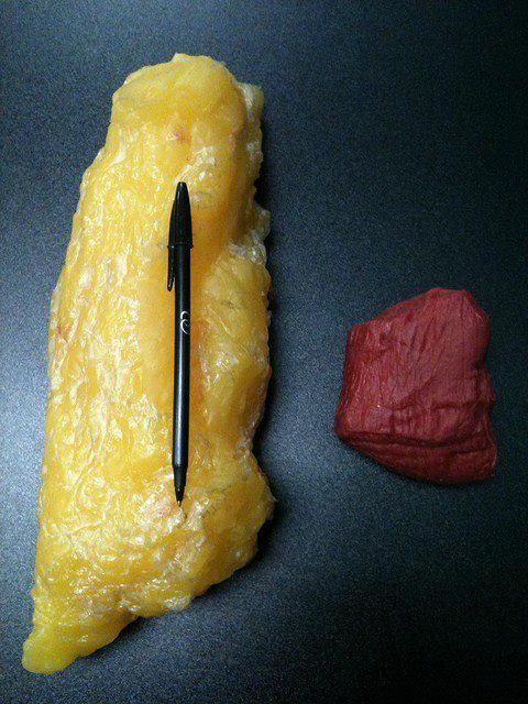5lbs of fat vs. 5lbs of muscle. gross, but a great illustration.