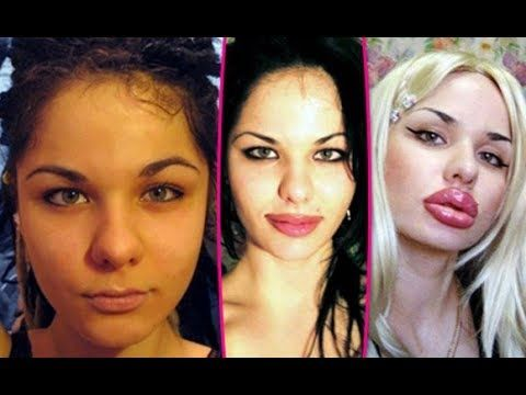20 Best and Worst Celebrity Plastic Surgery Stories -  …