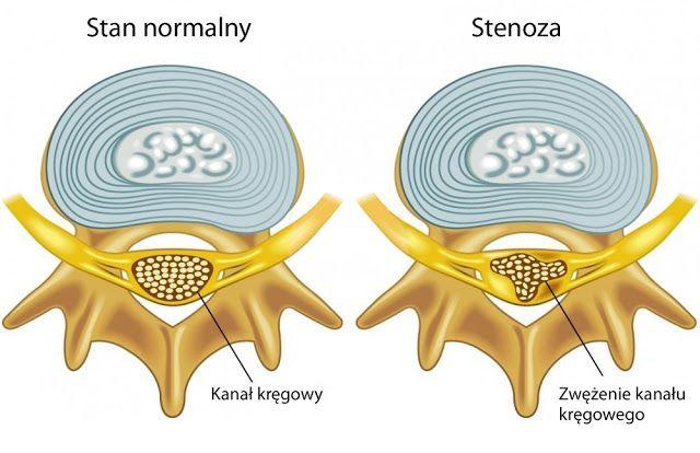 Spinal #stenosis, or stenosis is a disease of the lumbar #spine and the ...      Zwężenie kanału kręgowego, czyli #Stenoza jest chorobą odcinka #kręgosłupa lędźwiowego, a jej obj...