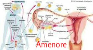 Cara Mengatasi Tidak Haid / Menstruasi dimana dalam istilah medis disebut Amonere / Amenore / Amenorea / Amenorrhea adalah dengan Ovary Nutrition Capsule  http://www.pagarsehat.web.id/cara-mengatasi-tidak-haid-atau-amenore/