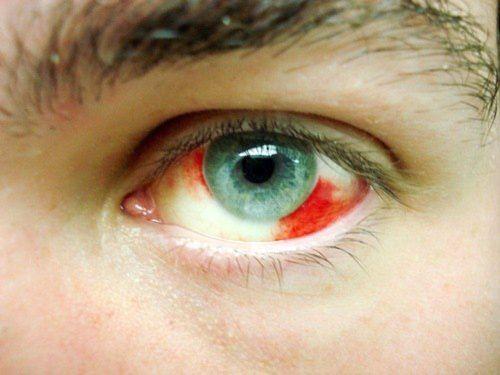 Una hemorragia o derrame ocular puede ocurrir por diferentes causas. Aquí te contamos las principales y qué debemos hacer en caso de derrame en el ojo.