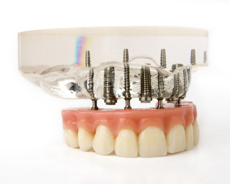 Dental Implants Your Local Cosmetic Dentist