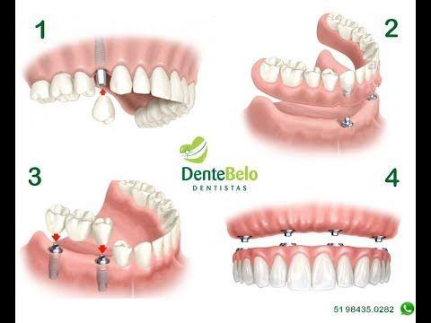 Tipos de implantes odontologicos