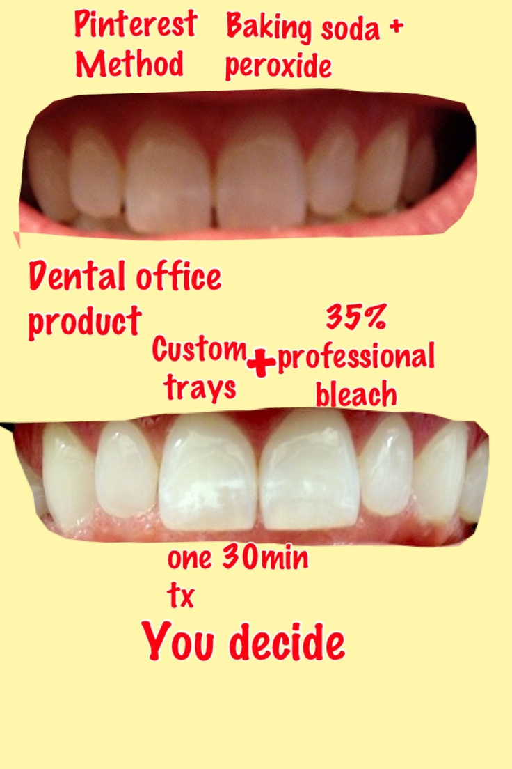 Colgate teeth whitening teeth whitening products pinterest teeth - Teeth White