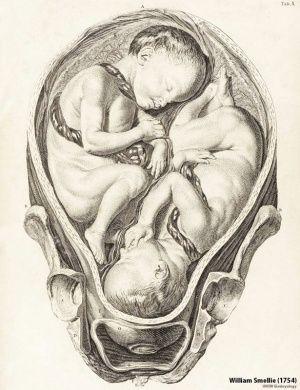 Ginecología William Hunter y William Smellie - 1774