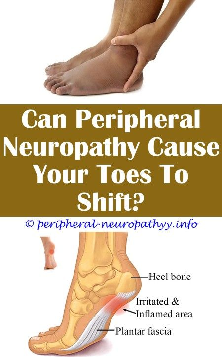 Uncontrolled diabetes and peripheral neuropathy.Multifocal motor neuropathy diagnosis code.Best shoes for neuropathy sufferers - Peripheral Neuropathy.