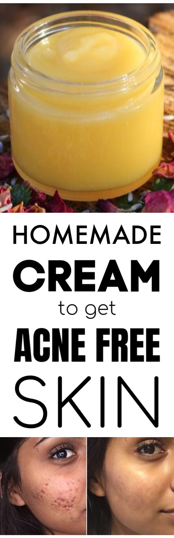 Homemade Acne Treatment Cream for different Skin Types