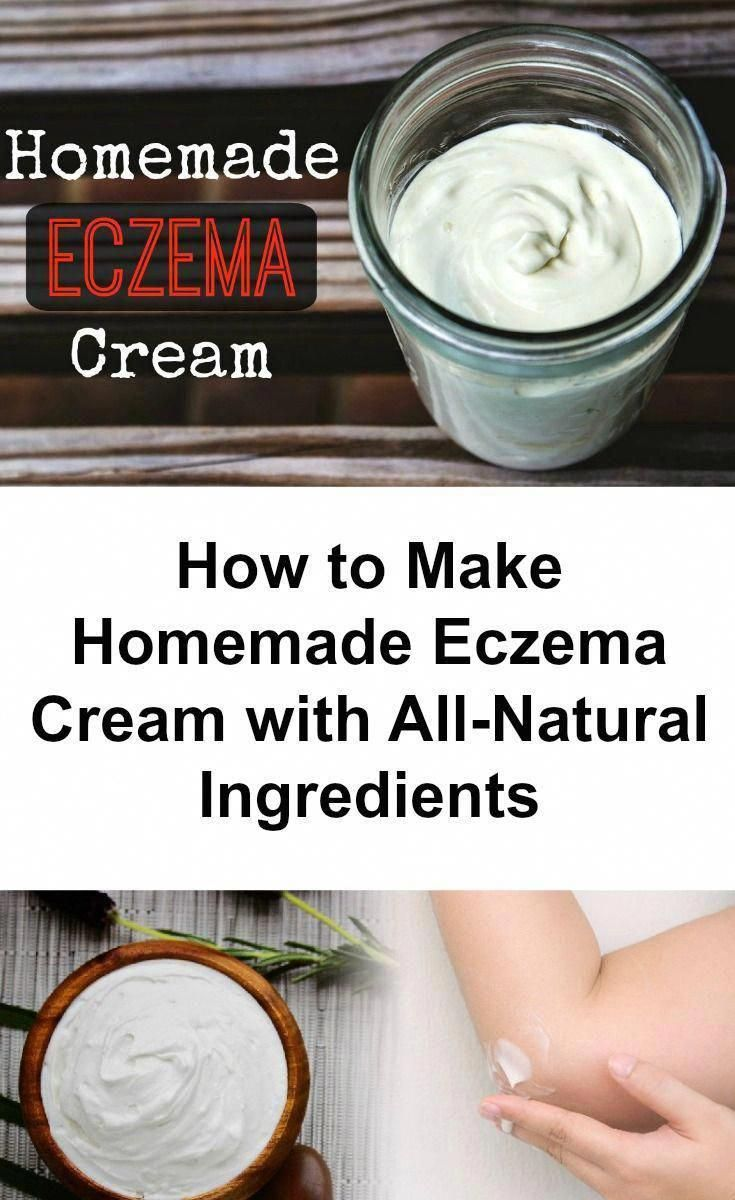 While Modern Medicine Calls For The Use Of Cortisone Creams And Other Steroidal Creams Which Suppress Your Immune Eczema Cream Natural Skincare Recipes Eczema