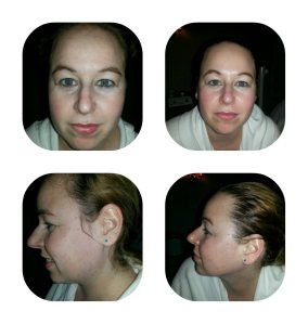 Check out my post all about one of Burke Williams newest and most popular facials called Anti-Aging in my article here! These are my before and after pictures.
