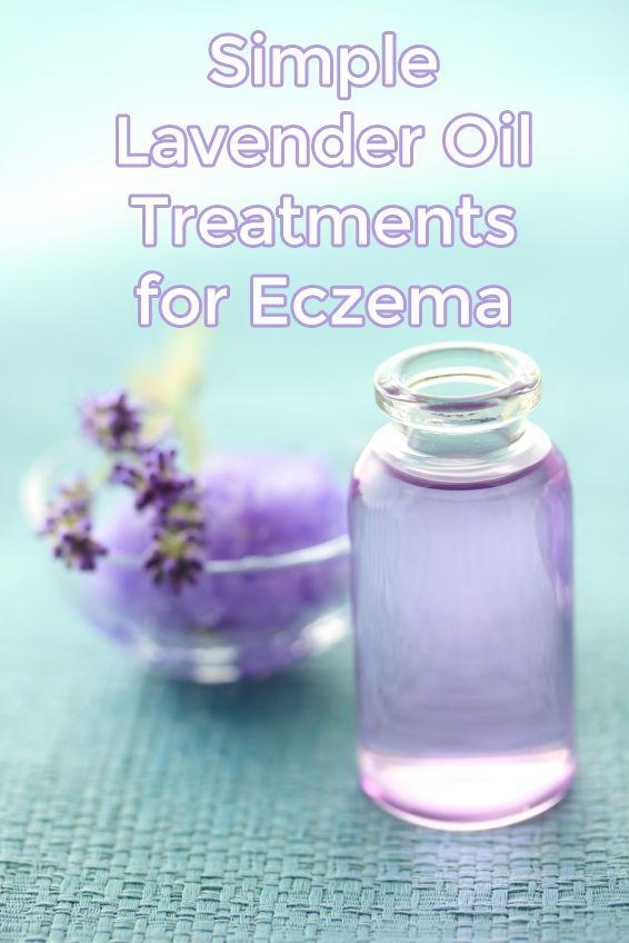 Lavender Oil Treatments for Eczema # PotionsOfPrevention