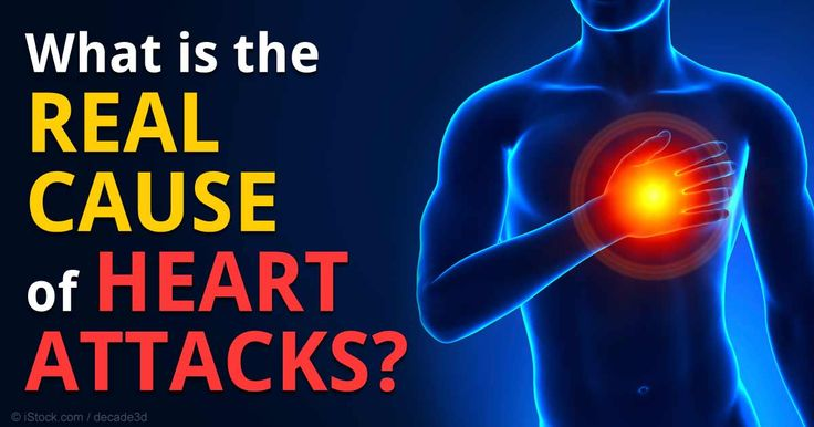 Most heart attacks are likely caused by an imbalance in  your central and autonomic nervous system, which controls the function of your internal organs. http://articles.mercola.com/sites/articles/archive/2014/12/17/real-cause-heart-attacks.aspx