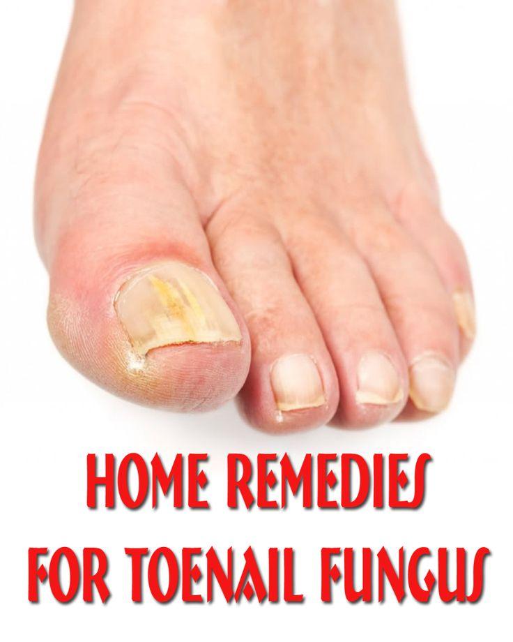 Natural Way To Get Rid Of Fungus On Toenail
