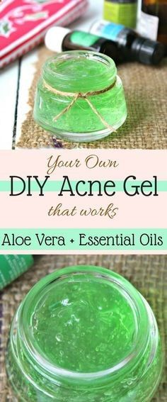 If you are a DIY person then you should give a must try to your skin of DIY acne gel which is made up of essential oils which are the main ingredient that will target our requirements.