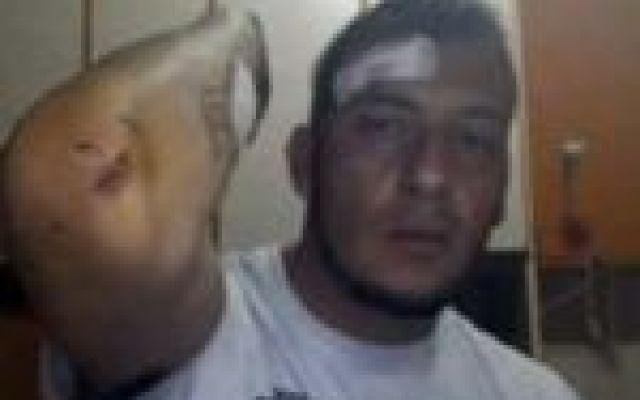 """Omofobia, aggredito un ragazzo al Parco Pinocchio di Salerno E' avvenuto nei giorni scorsi a Salerno l'ennesimo caso di omofobia. La vittima è un ragazzo, di nome Dario, che si trovava al Parco Pinocchio con indosso una maglietta con la scritta """"Io gay"""". In un #salerno #omofobia #gay"""