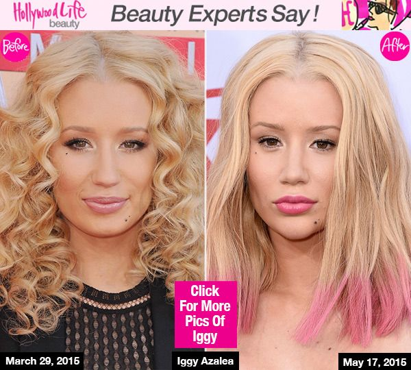 How many kids get plastic surgery every year?