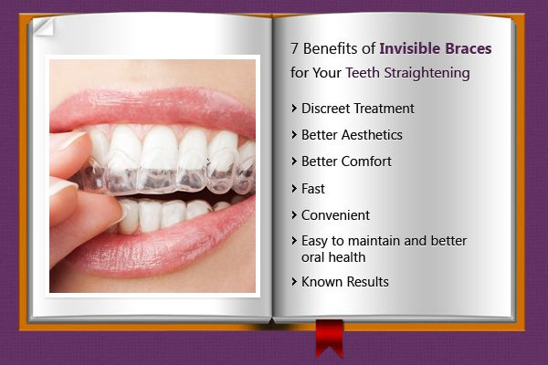 Do you know what is invisible braces? Sharing some information regarding #Orthodontic invisible #braces and its benefits