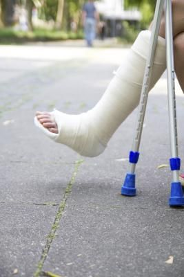 Exercises for an Ankle in a Cast