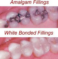 For years, the silver-mercury amalgam has been the standard filling material used in dental practices, and many practices still use it. While they are a reasonable restoration, amalgams possess certain shortcomings. For example, metal does not bond well to teeth, so decay can and does eventually leak into the tooth. But the main reason many of our patients are choosing our white bonded fillings has to do with the way they look. Many people just don't want an ugly black plug in their teeth.