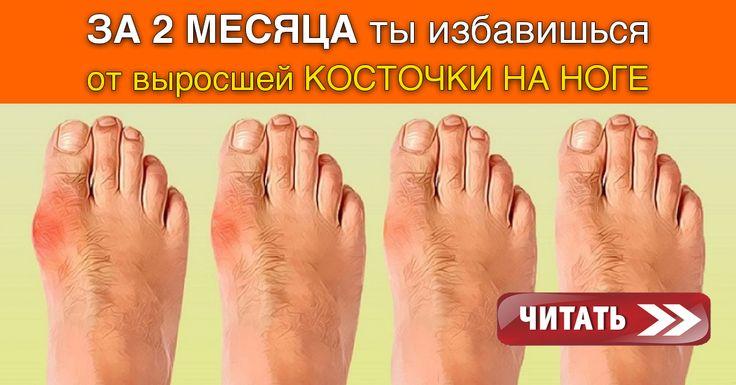 Ты знаешь от чего появляется, так называемая «косточка» (вальгусная деформация пальца стопы)? Тесная обувь, питание, плоскостопие…. Этот перечень можно продолжать долго и по сути — мы все находимся в зоне риска. Если у тебя возникла такая проблема — не стоит паниковать. Хирургическое вмешательство — не единственны вариант решения проблемы! У народной медицины есть свои методы. Как …