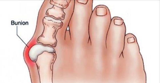 How To Get Rid of Bunions With This Simple and Powerful Remedy