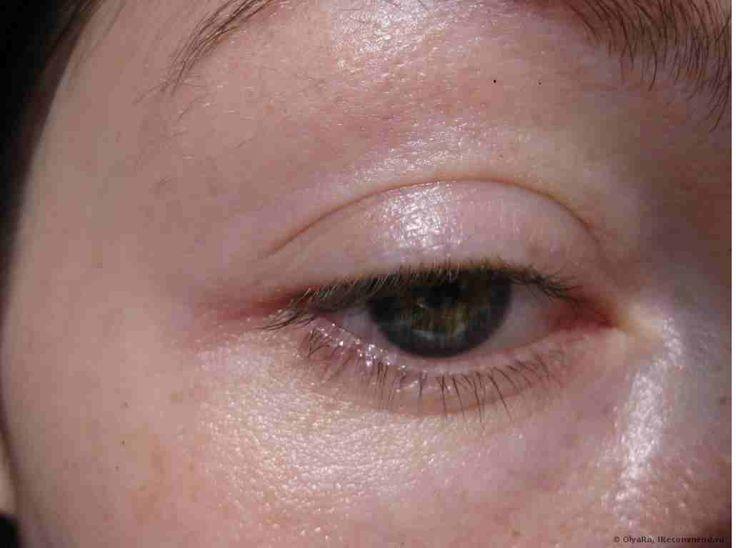 Изменения на лице - сигналы заболеваний! | мое здоровье