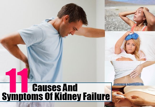Health Care A to Z - https://www.healthcareatoz.com/kidney-failure-causes-and-symptoms/