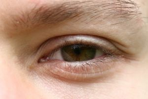 Homemade Eye Drops: Eye Life, Eye Care, Eyedrop, Blog Wwwsweyecomblog, Homemade Eye Drop, Health Natural Remedies, Baking Sodas, Sea Salts, Eye Dropper