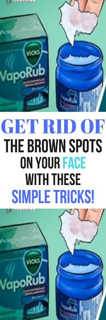 GET RID OF THE BROWN SPOTS ON YOUR FACE WITH THESE SIMPLE TRICKS!