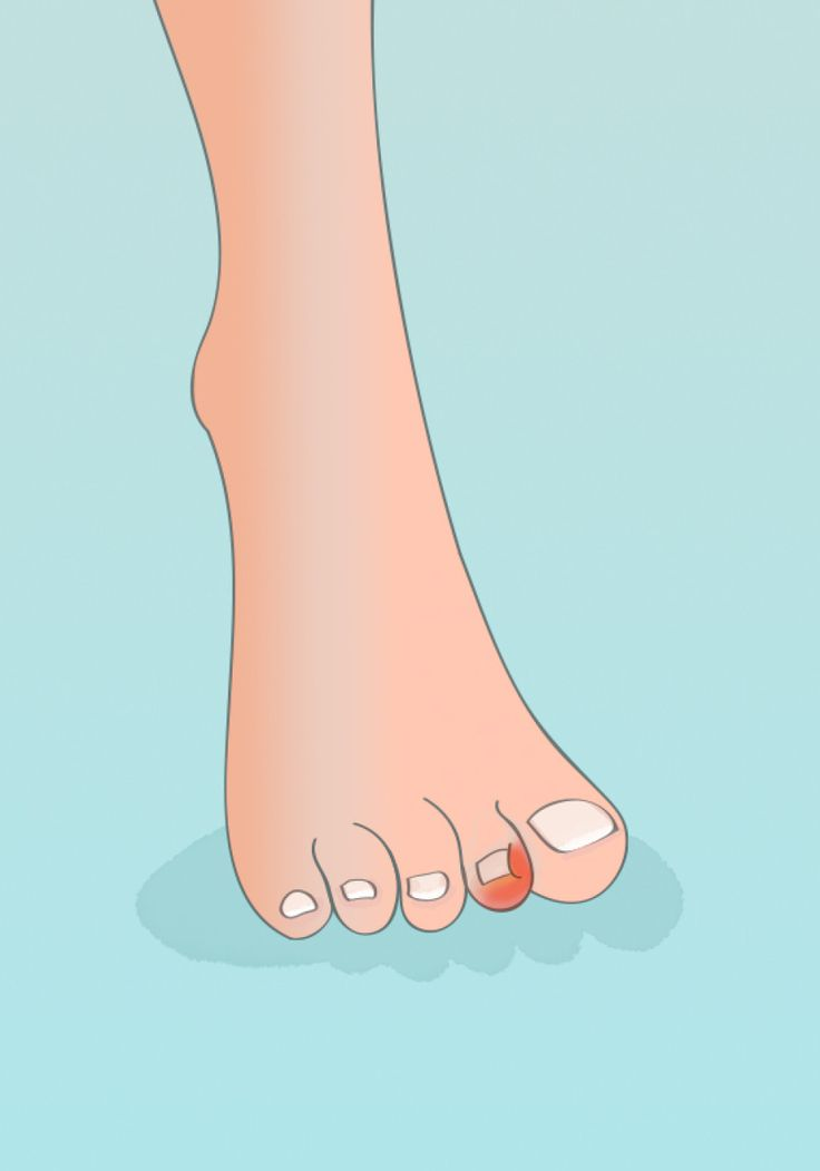 how to stop recurring ingrown toenails