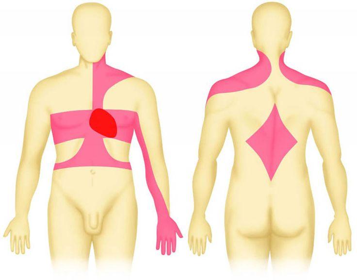 angina pectoris | Angina pectoris pain locations