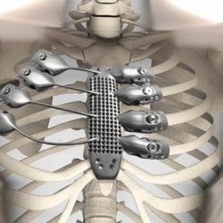 La tecnología 3D cada vez tiene más aplicaciones en la salud. Una de las últimas se ha materializado en un implante de titanio impreso en tres dimensiones para reconstruir la caja