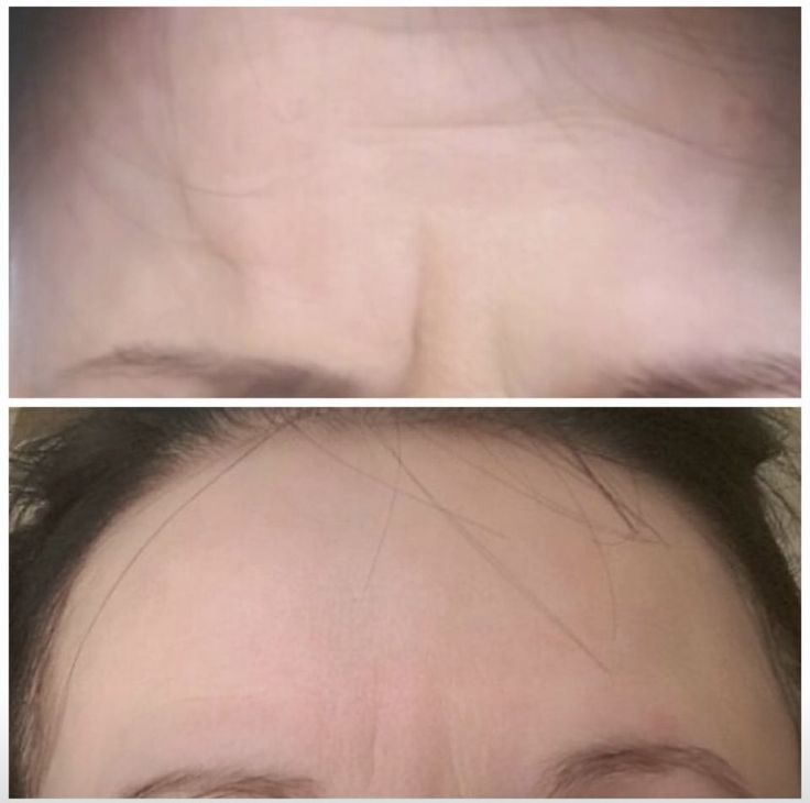 Limited spaces now for our next BOTOX clinic:  FRIDAY 21St APRIL 💉  Call today to book: 0121 647 5085  www.aesthetica-medispa.co.uk  #allerganbotox #fulldisclosure #againstanimaltesting #longlasting #younger #fresher #advancedqualifications #beforeandafters #naturalimprovement