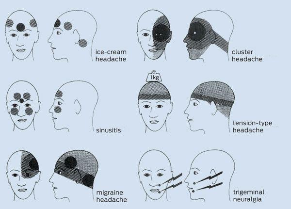 Practical neurology Part 7 - Recurrent headaches with visual disturbance | Medical Journal of Australia