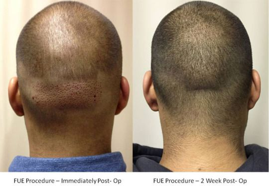 Reason for Choosing FUE Hair Transplant