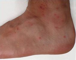 Chigger bites on an ankle