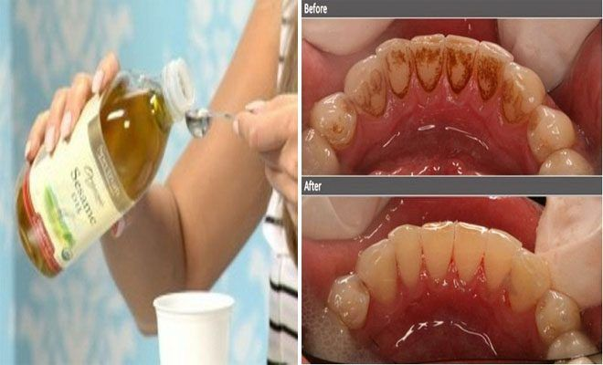 Πείτε ΑΝΤΙΟ στην κακή αναπνοή και την πλάκα και σκοτώστε τα βλαβερά βακτήρια στο στόμα σας μόνο με ένα συστατικό