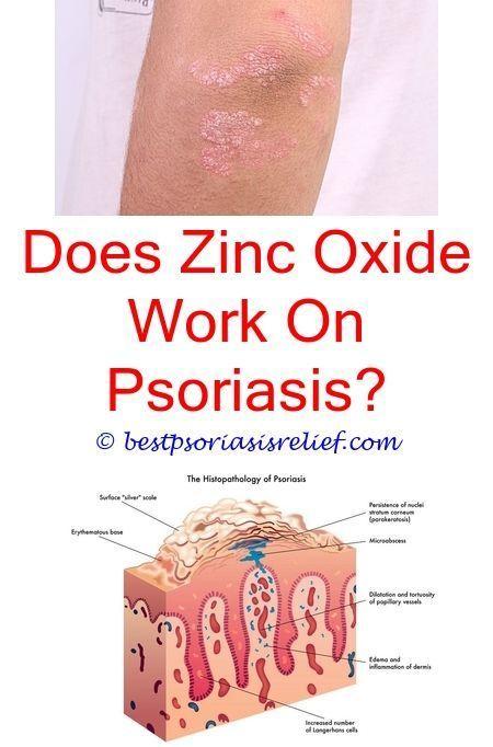 Denorex Uvb Reviews Lamp Psoriasis Psoriasisoftheliver dhQsrt