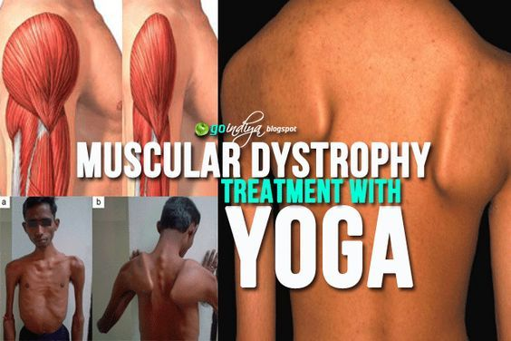 What are the treatments for muscular dystrophy, Muscular Dystrophy Diagnosis & Treatment, Duchenne/Becker Muscular Dystrophy Treatment and Care, muscular dystrophy treatment, muscular dystrophy treatment in Ayurveda, muscular dystrophy treatment in homoeopathy, muscular dystrophy physiotherapy treatment, limb girdle muscular dystrophy treatment, muscular dystrophy symptoms, muscular dystrophy treatment 2016, muscular dystrophy treatment 2017, muscular dystrophy treatment 2018, muscular…