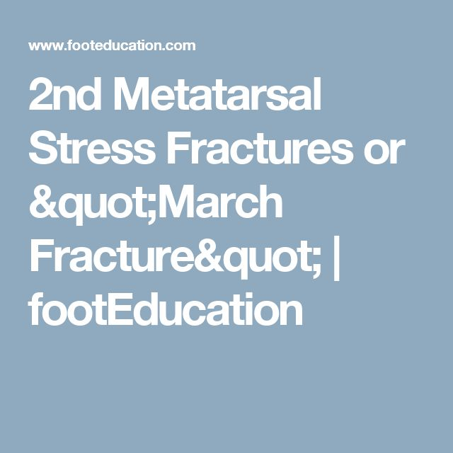 "2nd Metatarsal Stress Fractures or ""March Fracture"" 