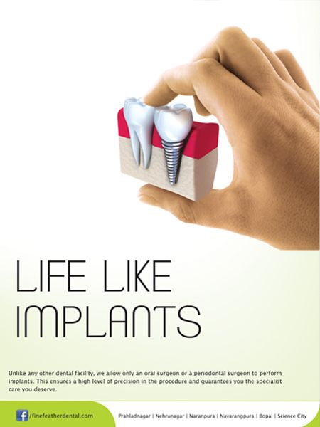 36 best images about Dental Implant Adverts on Pinterest ...