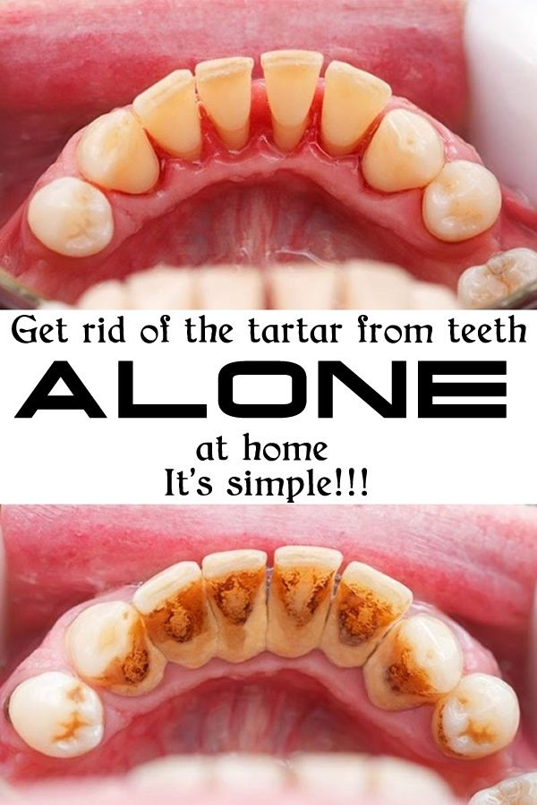 Get rid of the tartar from teeth ALONE at home 600x900