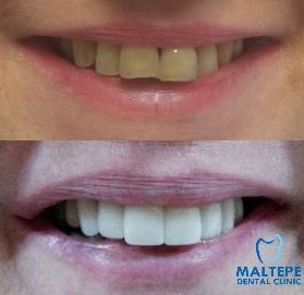 Veneers for whiter and more aesthetic smile