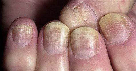 Ecco come sbiancare le unghie con rimedi naturali in caso siano particolarmente rovinate   Unghie gialle? Ecco come sbiancarle con questi rimedi naturali - Avere le unghie ?