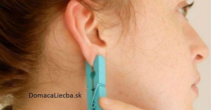 Stláčala si každý deň ucho so štipcom. Pozrite sa prečo