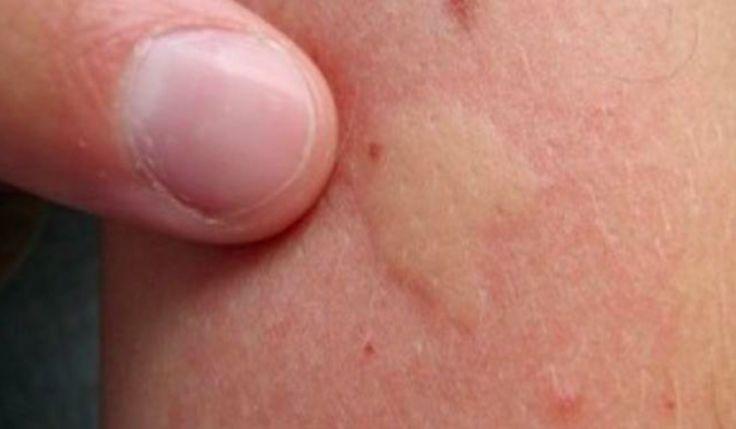 10 traitements qui soulagent une piqûre de moustique et réduisent le gonflement