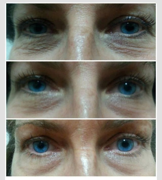 before and after pictures using rodan fields multifunction eye cream after 10 days https. Black Bedroom Furniture Sets. Home Design Ideas